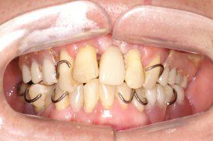 入れ歯 総 若い に の 入れ歯安定剤を使わなくてもいい総入れ歯(総入れ歯の治療例)